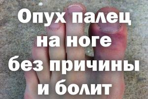 Опух палец на ноге без причины и болит