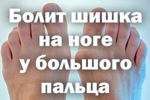 Болит шишка на ноге у большого пальца - что делать