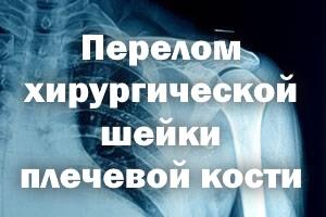 Перелом хирургической шейки плечевой кости