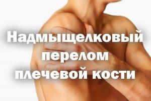 Надмыщелковый перелом плечевой кости