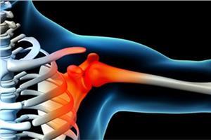Дискомфорт в плечевом суставе