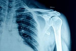 Лечение перелома шейки плеча и восстановление после травмы. Перелом хирургической шейки плеча