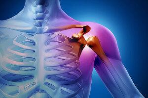 Переломанное плечо