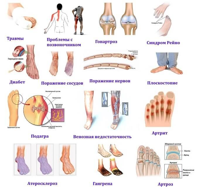 Причины онемения пальцев