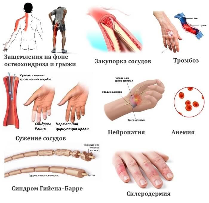 Причины онемения