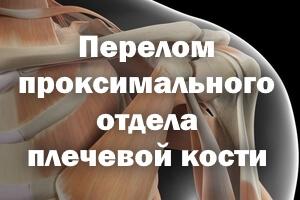 Перелом проксимального отдела плечевой кости