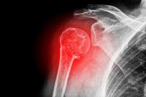 Рентген сломанной конечности