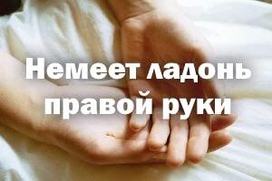 Немеет ладонь правой руки - причины