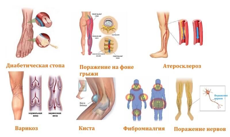 Причины парестезии ног