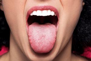 Проблемы у человека с языком