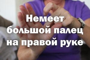 Немеет большой палец на правой руке