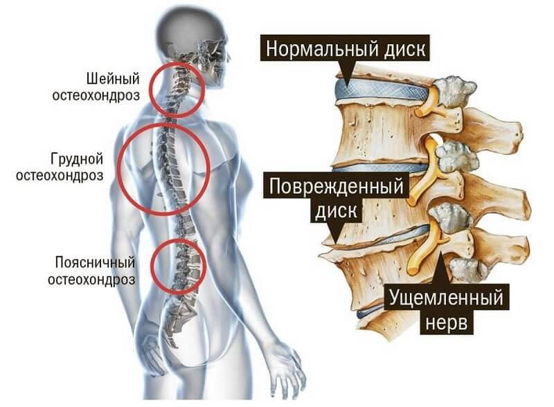Остеохондроз при онемении