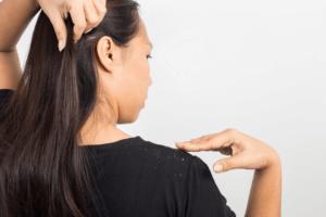 Парестезия скальпа головы