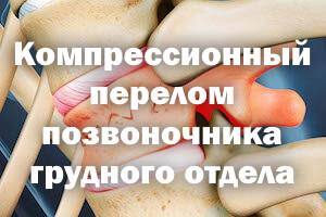 Компрессионный перелом позвоночника грудного отдела - терапия у взрослых