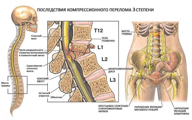 Осложнения компрессионного перелома