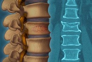 Лечение и реабилитация компрессионного перелома позвоночника у детей и взрослых — клиника «Добробут»