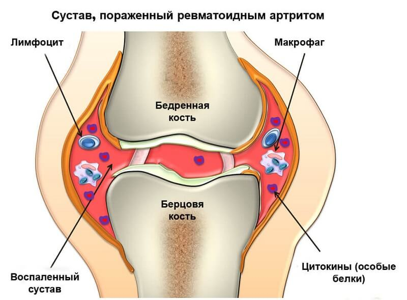 Артрит сустава голеностопа