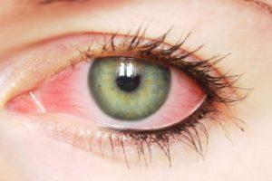 Покраснение глаз после наращивания ресниц чем лечить