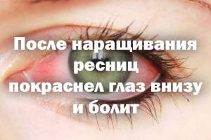После наращивания ресничек покраснел глаз внизу и болит