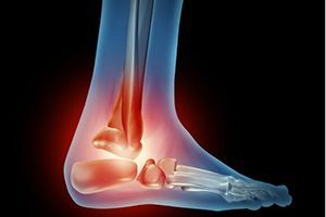 Болит голеностоп при ходьбе, что делать для устранения боли?