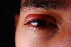 Припухлость над глазом
