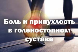Болезненность и припухлость в голеностопном суставе - причины