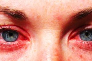 Раздражение в глазках