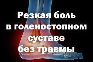Резкая боль в голеностопном суставе без повреждения
