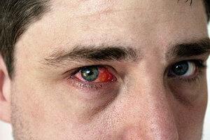 Кровоизлияние в глазу