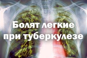 Боль в легких при туберкулезе