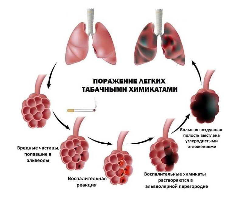 Поражение легких табачным дымом