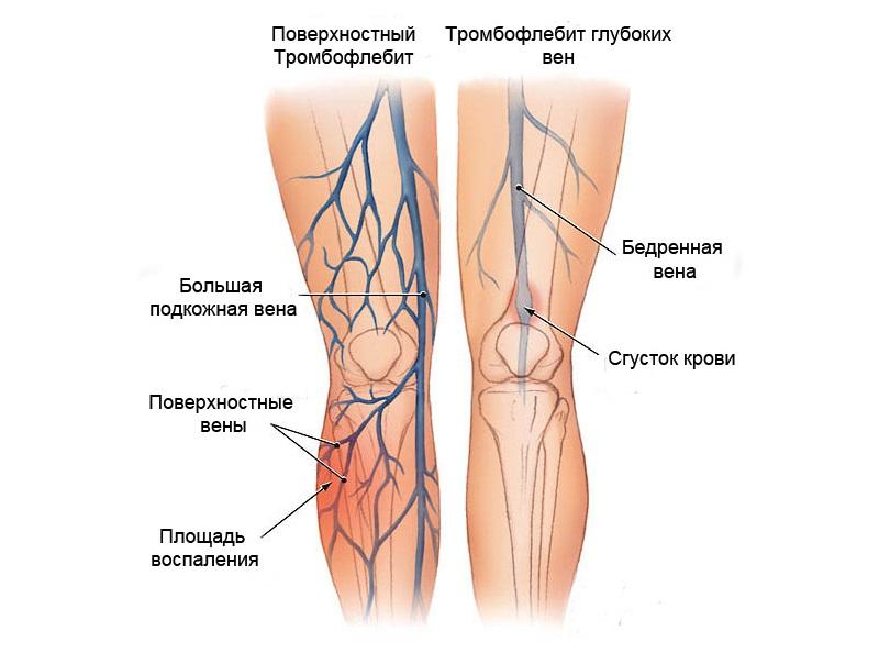 Тромбоз на ногах больного