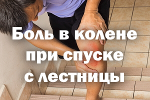 Боль в коленке при спуске с лестницы