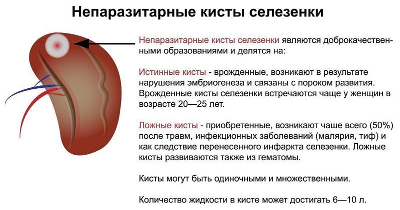Непаразитарные кисты органа