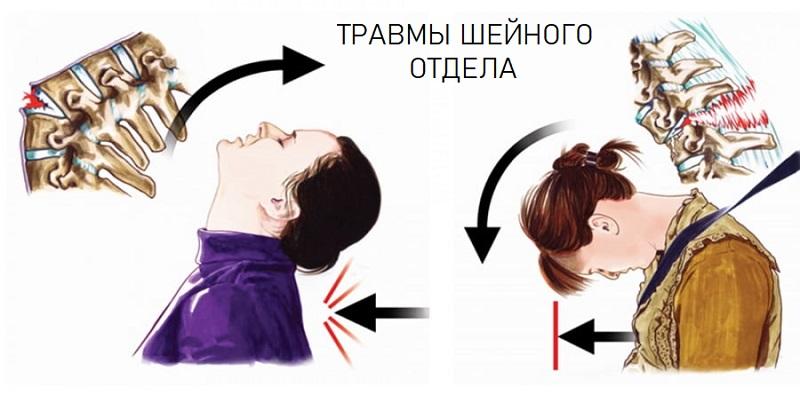 Повреждения шеи