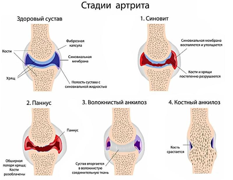 Этапы артрита