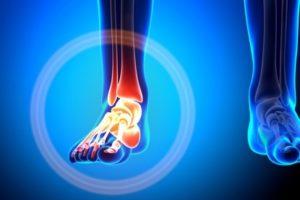 Поврежденная ножка