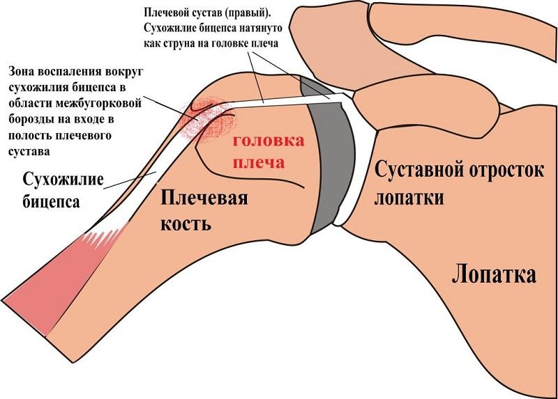 Воспаление сухожилия плечевого сустава
