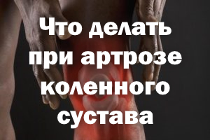 Что делать при артрозе коленки, как избежать боли