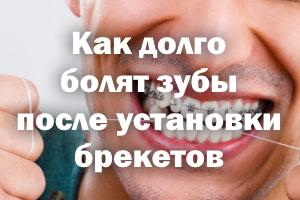Как долго ноют зубы после установки брекетов