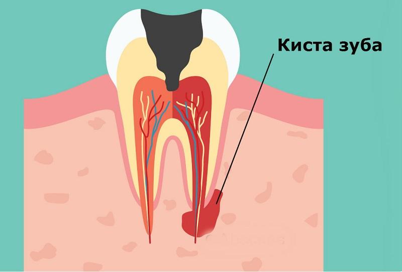 Киста зуба у больного