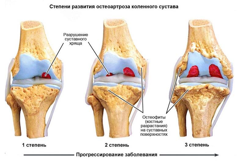 Остеоартроз имеет несколько стадий