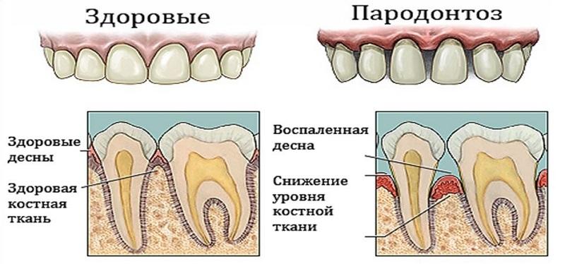 Пародонтоз зуба больного