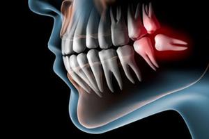 Зубы мудрости в зубном ряду