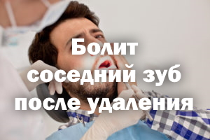 Болит соседний зуб после вырывания