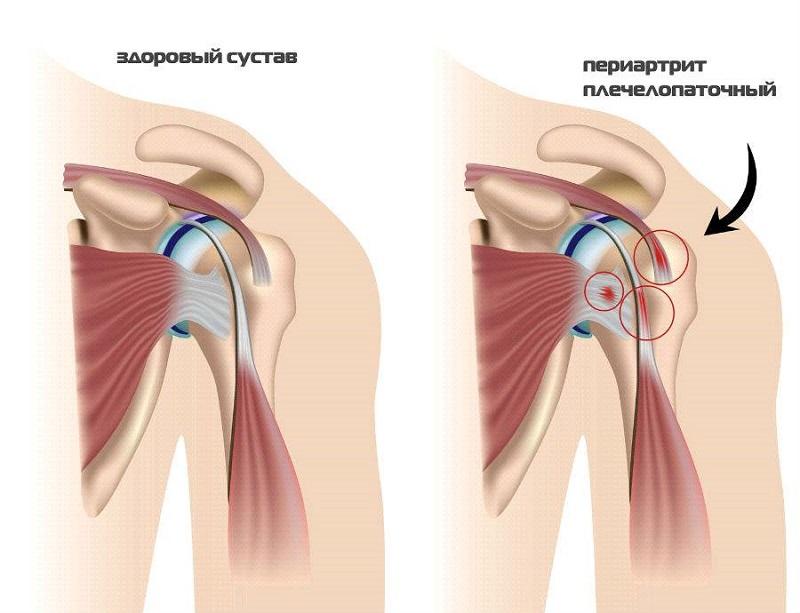 Анализ артрита и здорового сустава
