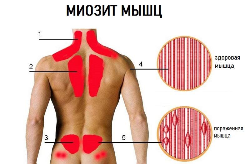 Поражение миозитом мышц