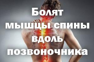 Болят мышцы спины вдоль позвонков