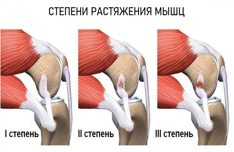 Растяжение мышц коленки