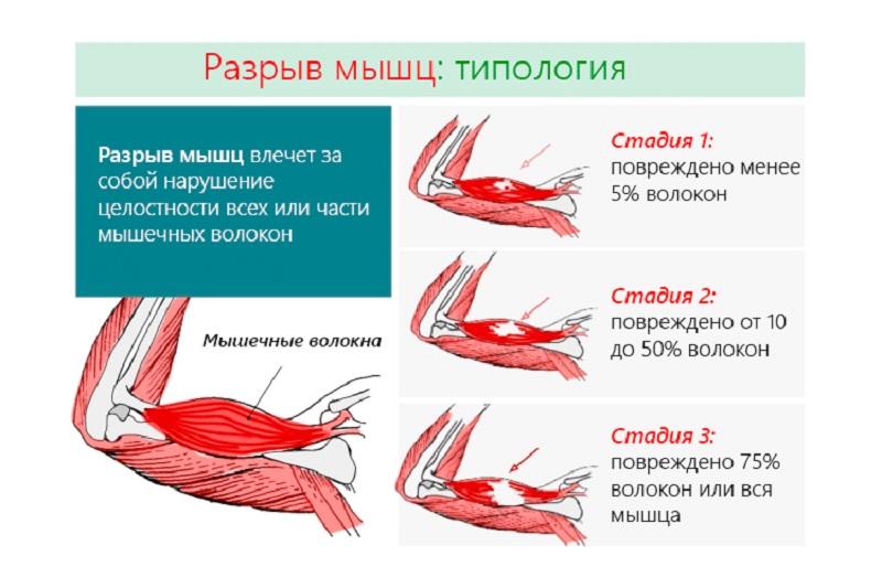 Разрыв мышц - стадии